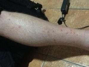 Mosquito Ravaged Legs